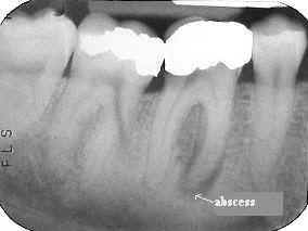 Periapical Abscess Biodent